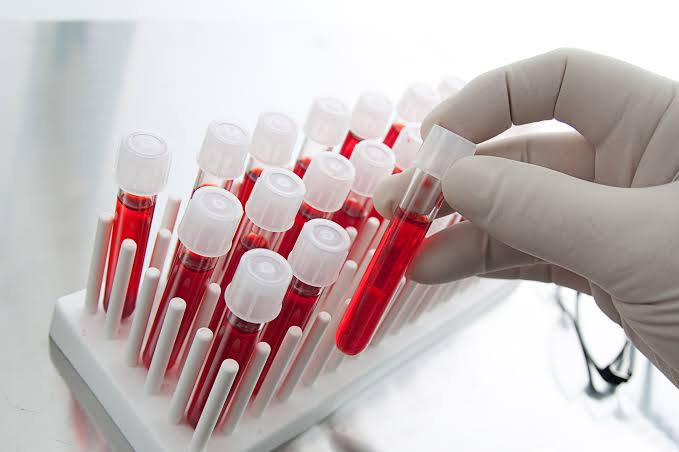 New Research Blood Screening Market growth factors and details for business 2020