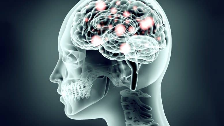Global Brain Implants Market analysis and innovation trends to 2026 just published