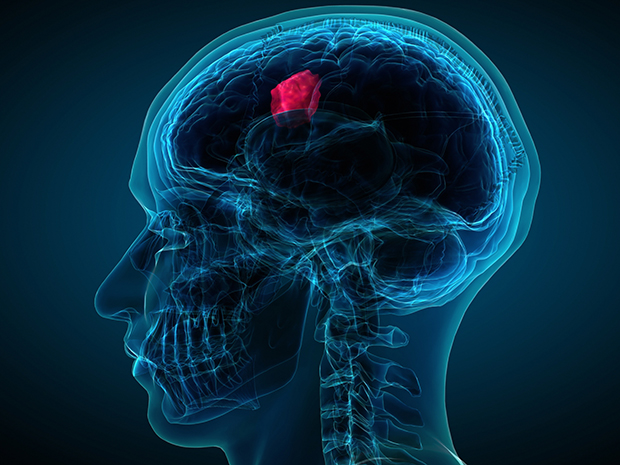 Global Brain Tumor Diagnosis and Treatment Market: Industry Growth, Key Players and Demand Forecast Report 2026