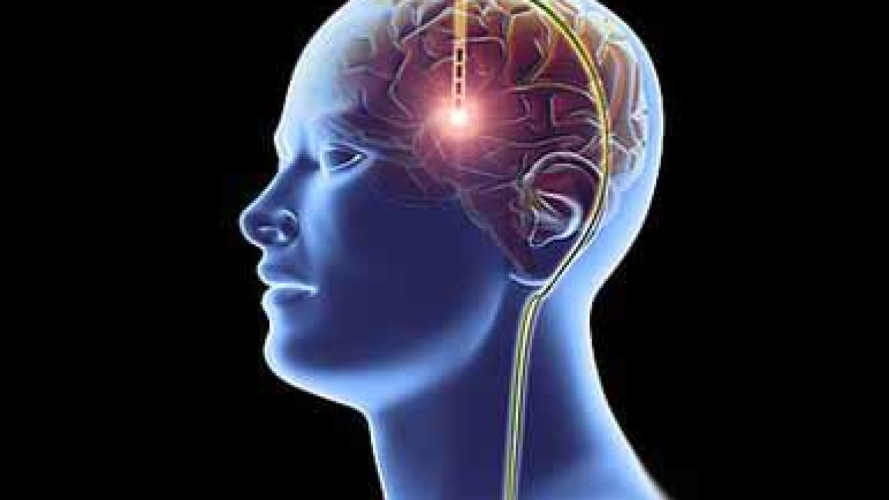 Global Deep Brain Stimulation Devices Market dynamics, segments, size and demand, 2020-2026