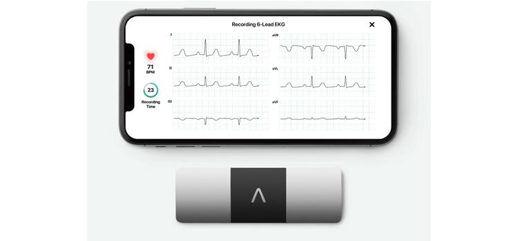 Global ECG Devices Market to garner exponential accruals by 2026 according to new research report