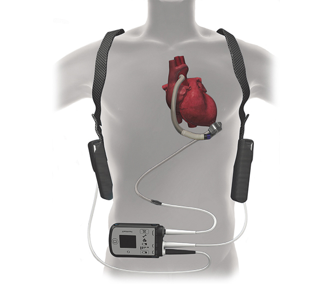 Heart Pump Device Market 2020-2026 industry share, regional analysis, trend, top vendors and insights shared in report