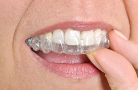 Invisible Orthodontics Market 2020 – Global Sales, Price, Revenue, Gross Margin and Market Share
