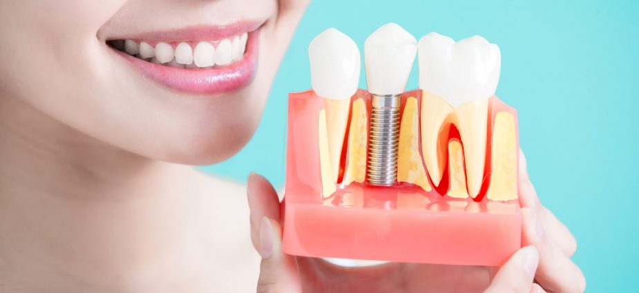 Osseointegration Implants Market to set astonishing growth by major segments By Product (Dental Implants, Hip Implants, Knee Implants, Spinal Implants), By Material ( Titanium Implants, Ceramic Implants, Zirconia Implants), By End-User (Hospitals, Ambulatory Surgical Centers) 2026