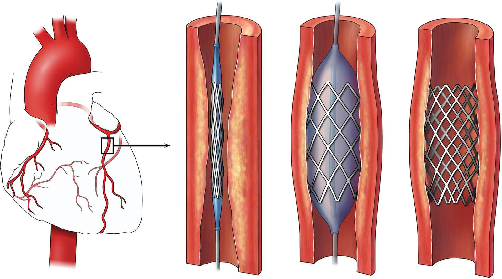 Global Intracranial Stents Market Segmented by Segment, Region, Size, Outlook, Share and Forecast 2020 | Market Density Report